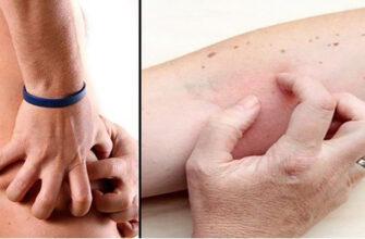 4 симптома повреждения почек, которые вы, скорее всего, игнорируете!