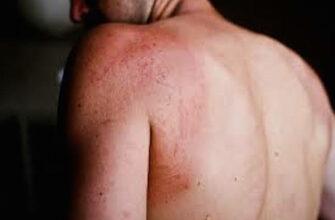 8 предупреждающих признаков диабета, которые могут появиться на вашей коже!