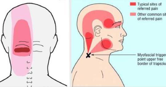 10 неожиданных вещей, которые могут вызвать страшную головную боль!
