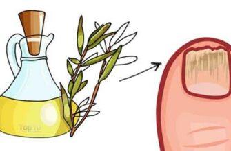 Топ-5 преимуществ масла чайного дерева для здоровья