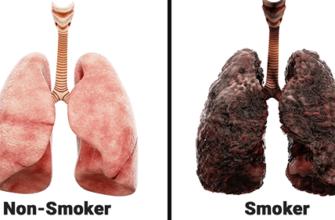 Медицинский работник рассказал, что ежедневное курение делает с легкими