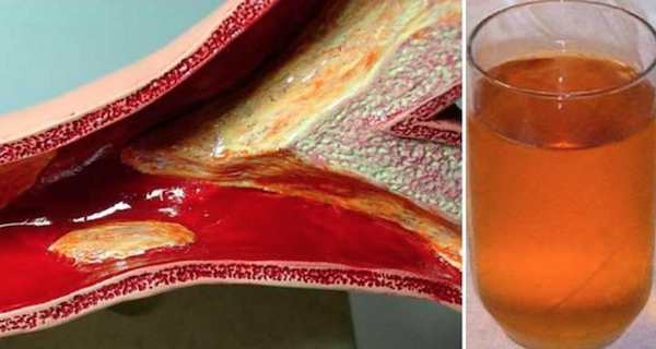 Я чуть не умер от сердечного приступа из-за закупоренных артерий, но этот напиток помог мне очистить их!