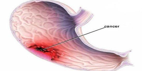 Рак желудка: тихий убийца - наиболее распространенные симптомы (не игнорируйте их)